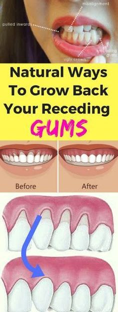 Grow Back Your Receding Gums With These Natural Remedies !...
