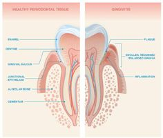 Bad Breath and Gingivitis - Oral Health, Dental Health, Dental Care, Periodontitis,