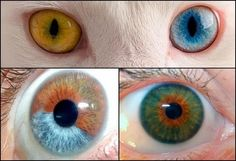"""Biologia-Vida: There are three types of heterochromia: complete (in which one eye has a different color from the other), sectoral/partial (where there are two different colors in only one eye) or central (a """"ring"""" of a different color from the iris that circulates the pupil)."""