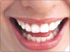peroxide teeth whitening