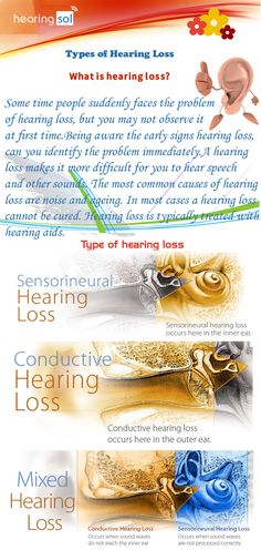 There are three type of hearing loss sensorineural hearing loss, conductive hearing loss ,mixed hearing loss this problem may become at any time in your life. so, be aware for this hearing loss problem. Tinnitus Symptoms, Hearing Impairment, Hearing Problems, Middle Ear, Calming Activities, Cognitive Behavioral Therapy, Speech Language Pathology, Effective Communication, Hearing Aids