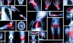 20 druhov bolestí, ktorých zdrojom je konkrétny emočný stav - Báječný lekár