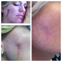 AMAZING AMAZING results using Nerium AD for 90 days. Ask me how to get your product for FREE at www.facebook.com/wrinkleproofyourskin or www.stefaniegass.arealbreakthrough.com