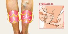 What Causes Varicose Veins and How to Get Rid of Them For Good