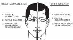 Hyperthermia (heat stroke) how to recognize and how to treat Spa Kamper note: need to know when working post event massage Emergency First Aid, Emergency Medicine, Health Tips, Health And Wellness, Health And Beauty, Spa, Medical Information, Girls Camp, Survival Tips