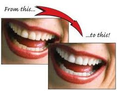 Best Dental Clinic provide effective Teeth whitening procedures in India