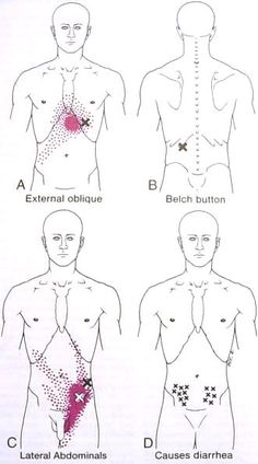 Groin/Testicle pain.....if it looks like this.....I can help you