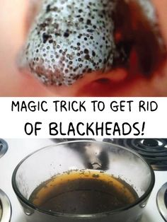 Magic Trick to Get Rid of Blackheads