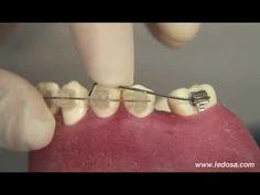 ORTOCERVERA / Ortodoncia: Enderezamiento de molares - Brackets Autoligado Camaleón - YouTube