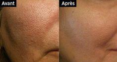 Vous pouvez resserrer vos pores dilatés naturellement. Voici la recette qui vous aidera à améliorer votre qualité de peau !