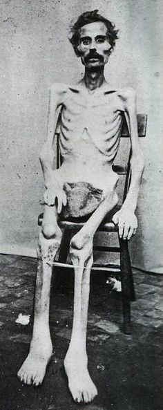 *AMERICAN CIVIL WAR POW ~ a shameful stain upon our nation's history and a crime against humanity.