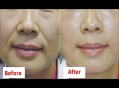 Wrinkles around the mouth which is called laugh lines, smile lines, or nasolabial folds are an unfortunate part of the aging process. Nasolabial folds are th. Lymph Massage, Face Massage, Lines Around Mouth, Face Care, Skin Care, Face Yoga Method, Yoga Facial, Anti Aging Creme, Face Wrinkles