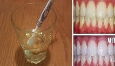 The Masterplan: Apparently, whiten teeth in Time Three Minutes