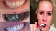 Guaranteed Teeth Whitening Within A Week *** Get a free blackhead mask, link in bio! @beautycharcoal