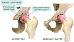 Показания и противопоказания Тазобедренный сустав принимает на себя основную нагрузку при вертикальном положении тела как в неподвижном состоянии, так и во время ходьбы, бега. Он является самым крупным, а его травмы требуют длительного лечения и восстановления. Возрастные изменения неизбежно начинают…