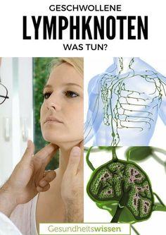 Wozu die Lymphknoten da sind? Das sind die Hauptquartiere für unsere Weißen Blutkörperchen. Die helfen uns, Infektionen und Keime zu bekämpfen. Und was bedeutet es, wenn wir geschwollene Lymphknoten haben? Dann will uns unser Körper etwas sagen. Es muss nichts schlimmes sein, aber hast Du geschwollene Lympknoten, sollte sich sich das ein Arzt ansehen. Hier das wichtigste zu Lymphknoten