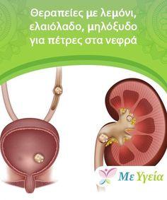 Θεραπείες με λεμόνι, ελαιόλαδο, μηλόξυδο για πέτρες στα νεφρά   Τι προκαλεί τις πέτρες στα νεφρά και πως αντιμετωπίζονται; Σε αυτό το άρθρο θα βρείτε σπιτικές θεραπείες με λεμόνι, ελαιόλαδο και μηλόξυδο!