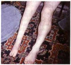 Post-polio syndrome is the syndrome which occurs 15-20 years after the initial infection by poliomyelitis virus. The symptoms are sometimes only mild but other times can lead to muscle weakness and marked muscular atrophy and can affect both previously affected and new muscles.