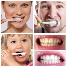 Watch This Video Fantasting All-Natural Home Remedies To Whiten Teeth Ideas. All Time Best All-Natural Home Remedies To Whiten Teeth Ideas. Teeth Whitening Procedure, Teeth Whitening Remedies, Charcoal Teeth Whitening, Natural Teeth Whitening, Nu Skin, Teeth Bleaching, Healthy Teeth, Natural Home Remedies, Natural Skin Care