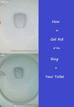 How to Get Rid of the Ring in your Toilet