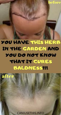 You have this herb in the garden and you do not know that it cures baldness – Health Awareness Media Inbound Marketing, Marketing Digital, Natural Treatments, Natural Remedies, Hair Treatments, Sante Plus, The Cure, Natural Diuretic, Body Fitness