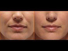 Doppelkinn und Falten loswerden Haut straffen Yoga im Gesicht vollere Lippen Yoga Facial, Facial Muscles, Face Gym, Relleno Facial, Double Menton, Nasolabial Folds, Best Anti Aging Creams, Face Massage, Lips