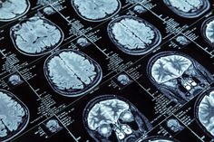 Study Shows Diffusion Tensor Imaging Useful in Detecting Long-term Outcomes in TBI - http://rozeklaw.com/2016/06/24/study-shows-diffusion-tensor-imaging-detecting-long-term-outcomes-tbi/ - http://rozeklaw.com/wp-content/uploads/2016/06/Study-Shows-Diffusion-Tensor-Imaging-Useful-in-Detecting-Long-term-Outcomes-in-TBI-1025x683.jpg