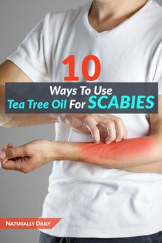 How to Use Tea Tree Oil for Scabies Treatment Tea tree oil has potent therapeutic components that may help to resolve scabies and its symptoms. Continue reading to learn how to use tea tree oil for scabies. Home Remedies For Scabies, Constipation Remedies, Natural Health Remedies, Rashes Remedies, Natural Treatments, Easential Oils, Essential Oils For Colds, Skin Rash