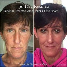 Life changing results with Rodan+Fields Redefine and Reverse Regimens! It DOES work!