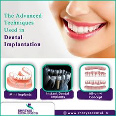 Do you have a missing tooth or teeth? Visit Shreyas Dental Hospital, we use the most advanced #dentalimplant techniques which are minimally invasive. https://goo.gl/tbFbXL  Book your Appointment: 📞 +91-9712994608 | 🌐 www.shreyasdental.in  #InstantDentalImplants #TeethIn3Days