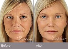 The Restylane family of products includes Restylane, Restylane-L®, Restylane® Silk, Perlane®, and Perlane-L®. Restylane, Restylane-L, Perlane, and Perlane-L can be used to add volume and fullness to the skin to correct moderate to severe facial wrinkles and folds, such as the lines from your nose to the corners of your mouth (nasolabial folds). Restylane, Restylane-L, and Restylane Silk may also be used for lip enhancement in patients over 21 years.
