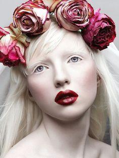 Albinas, con orejas grandes y 'ojos de pez': las nuevas modelos que rompieron el molde con su peculiar belleza