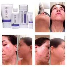 Look at these amazing results! Many of us have had struggles with acne and this customer had struggled with acne for many years and she went to several dermatologists, even tried 2 rounds of accutane. Nothing was working to clear her acne and then a friend told her about the amazing Rodan and Fields products. She gave the Unblemish regimen a try and had no side effects and loved her results. If you want to know more about these awesome products, message me