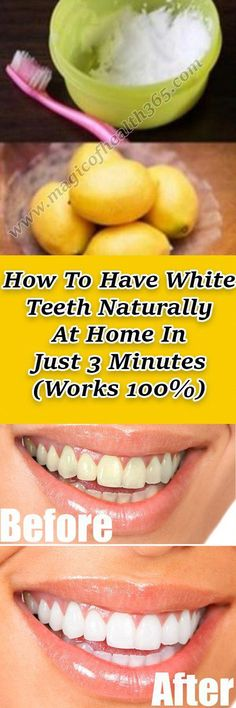 How To Have White Teeth Naturally At Home (Works – Herbal Medicine Book Medicine Book, Herbal Medicine, Natural Medicine, Stained Teeth, Foods With Calcium, Best Oral, Living At Home, Beauty Tips, Adhd Diet