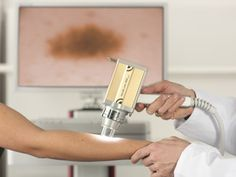 Ben Wiese of the Kelowna Skin Cancer Screening Clinic Announces the Addition of the FotoFinder Mole Mapper Dr Ben, Digital Journal, Mole, Clinic, Cancer, Mole Sauce