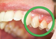 Best Home Remedies for Gingivitis If you had a tooth infection and also having so much pain, then do not worry. Here we share some easy natural home remedies for a tooth infection. This type of infection is called gingivitis, 95% of adults are suffering from this infection. Bacteria s will attack on the tooth in this condition and make them weak. These bacteria s will get stronger and your teeth will become unclean and damaged. During brush blood