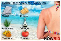 how to get rid of sunburn 1