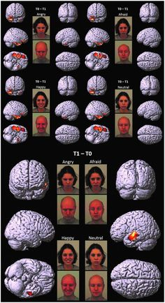 Neural processing of emotions in traumatized children treated with Eye Movement Desensitization and Reprocessing therapy: a hdEEG study Eye Movement Desensitization and Reprocessing (EMDR) therapy ...