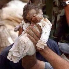 This baby paid its Life for Netanyahu's right to defend Israel. DO YOU HAVE ANY IDEA HOW MANY PEOPLE ALL OVER THE WORLD SEEING THIS IMAGE WILL CURSE THIS MAN ? PLEASE PIN AND RE PIN, LET THE WORLD KNOW!!!!!!!!!!!!!!!!!!!!!!!!!!!!!!!!!!!!!!!!