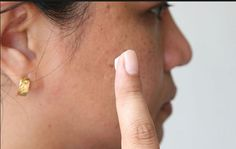Toothpaste on burns relieves pain