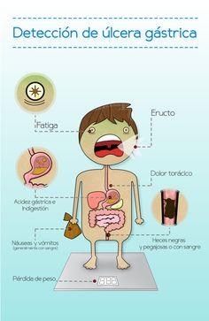 Detección para la salud by Edith Adhi, via Behance  #infografia #infographics #ulcera