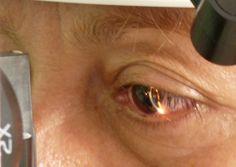 http://moscas-volantes-cura.plus101.com ---Tratamiento Para Las Moscas Volantes.  Comenzaron a extenderse los períodos en que ya no me sentía perseguido por esas horribles sombras que interrumpían mis lecturas y mi trabajo frente al ordenador. Había días en que podía cerrar tranquilamente los ojos y... simplemente ya no estaban allí!  Luego de tanto tiempo y trabajo, por fín había encontrado la justa combinación de tratamientos naturales que podían lograr la remisión de la sintomatología