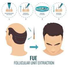 Zayn Skin Clinic offers hair transplant in Pune at affordable cost with 100% proven good. We offer both FUT and FUE hair transplant techniques. Check Review Hair clinic in Pune For more information visit : www.zaynskinclinic.com/hair-transplantation.php