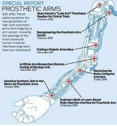 IEEE Spectrum Special Report on Prosthetic Arms | Singularity Hub