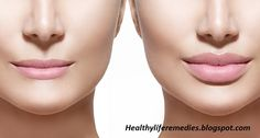 pinterest: @pooh_bossy365   Lip Augmentation