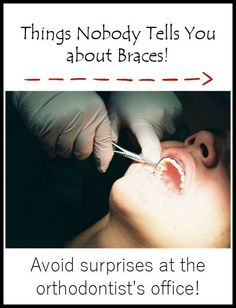 Parenting Tips: Things nobody tells you about braces. Read this story for great tips: Parenting Tips: Things nobody tells you about braces. Read this story for great tips Braces Food, Braces Tips, Dental Braces, Teeth Braces, Cost Of Braces, Braces For Kids, Foods For Braces, Dental Care, Braces Meme