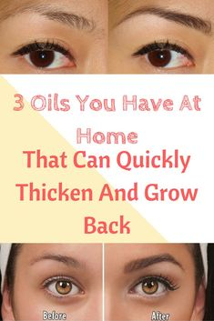 Hair Remedies 3 Oils You Have At Home That Can Quickly Thicken And Grow Back Eyebrow Hair Beauty Care, Beauty Skin, Health And Beauty, Hair Beauty, Eyebrow Regrowth, Hair Regrowth, Hair Follicles, Castor Oil Eyebrows, Coconut Oil Eyebrows