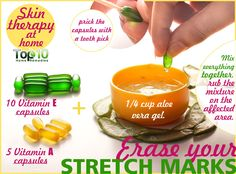 Beauty Remedies How To Get Rid Of Stretch Marks Home Remedies - Stretch Marks Homemade Remedies - Top 10 Home Remedies, Home Remedies For Hair, Natural Home Remedies, Holistic Remedies, Acne Remedies, Herbal Remedies, Health Remedies, Stretch Mark Remedies, Stretch Mark Removal