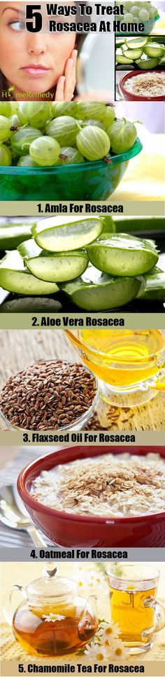 5 Home Remedies For Rosacea - Natural Treatments & Cure For Rosacea | Find Home Remedy & Supplements