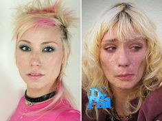 Jael from America's Next Top Model - just a short time after being on the show she got hooked on meth.  What a sad transformation.